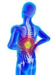 back injury photo